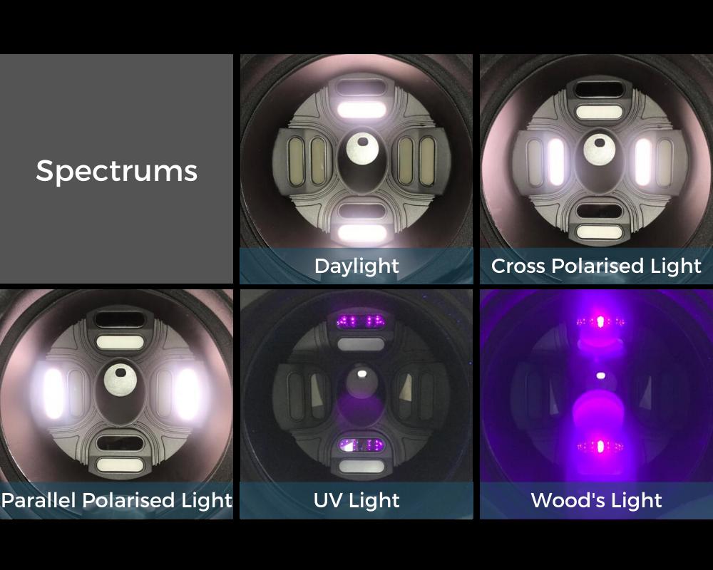 MoreMe Skin Analyser Spectrums