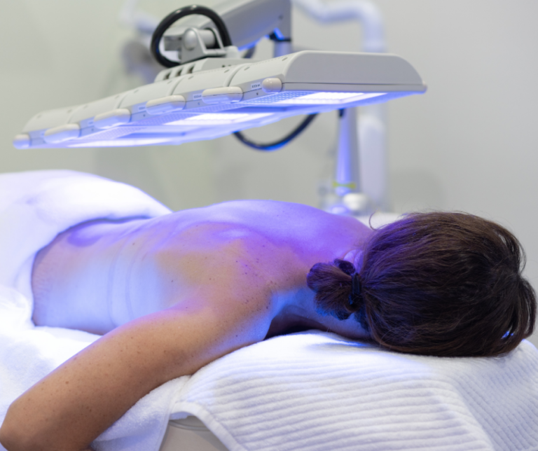 bacne led therapy