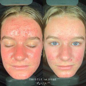 skin analysis machine before after